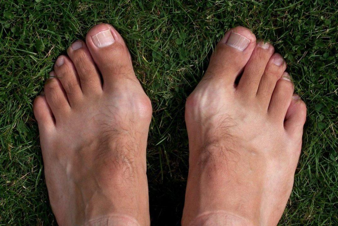 Daily Express: Наросты на ногах могут указывать на опасный уровень холестерина в крови
